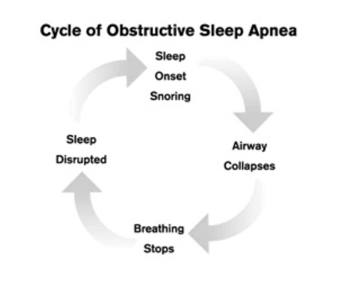 sleep apnea cycler