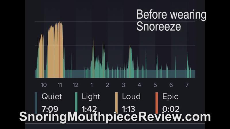 before snoreeze