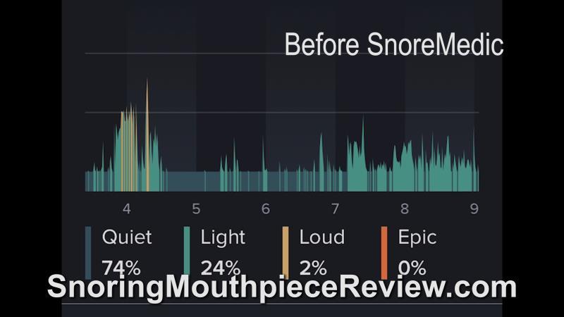 before snoremedic