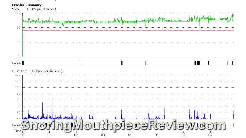 snoremedic O2 report