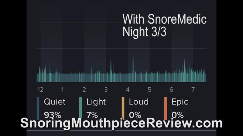 snoremedic night 3