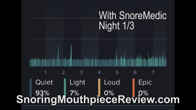snoremedic night 1